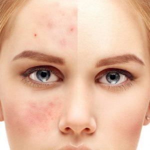 درمان انواع جوش صورت