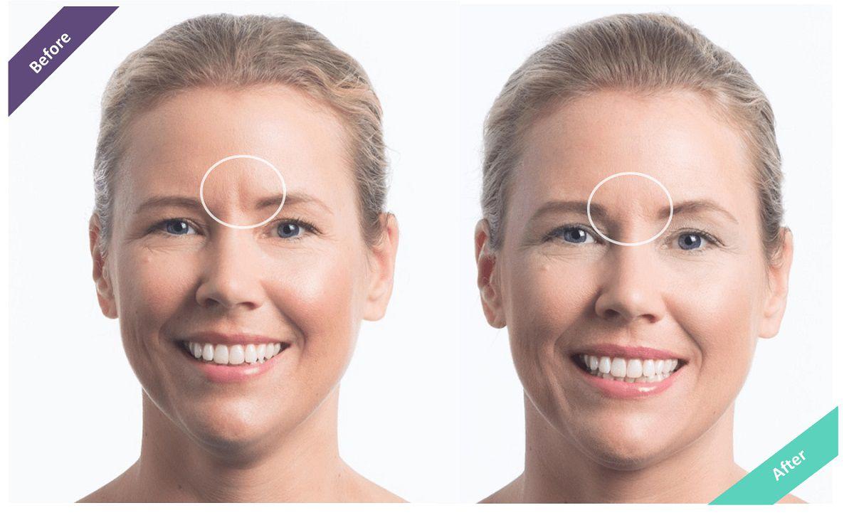قبل و بعد از تزریق ژل برای خط اخم