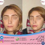 تزریق ژل لب قبل و بعد
