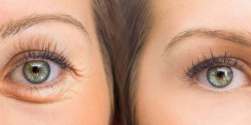 تاثیر تزریق ژل زیر چشم
