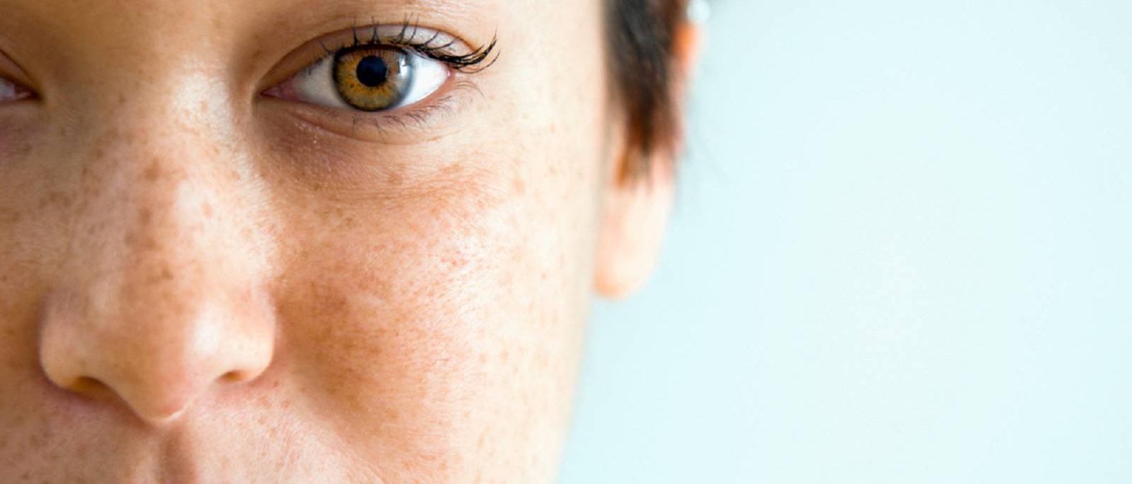 درمان لک صورت